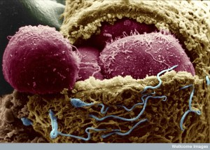 Human Embryo exposing the embryonic cells. Credit: Yorgos Nikas. Wellcome Images.