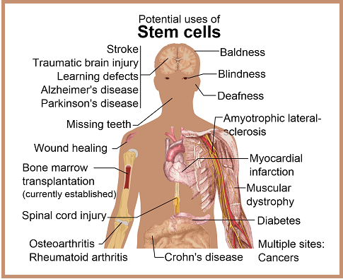 "Diseases and conditions where stem cell treatment is promising or emerging. Please click for article ""A  Shia Muslim Perspective on Stem Cell Research."" Image: Wikipedia."